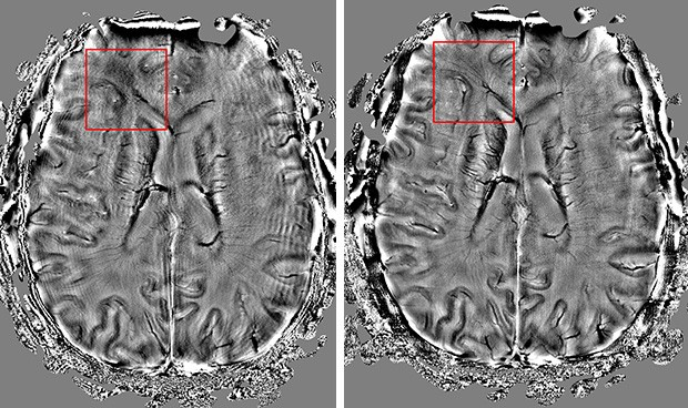 The first scan of a preserve brain (left) has artificially induced movement, so we can clearly see the wave-like effect resulting from motion induced artifacts. In the second image (right), the motion correction technology was turned on. The result is a clear increase in image clarity and visible details.