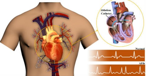 Tactile sensors improve surgical success and patient safety in treating cardiac arrhythmia