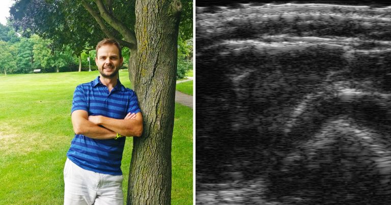 At left: Jesse Whyte. At right: An ultrasound image of an arm that depicts a cross-sectional slice, which Whyte uses to measure skin, body fat and muscle thickness.